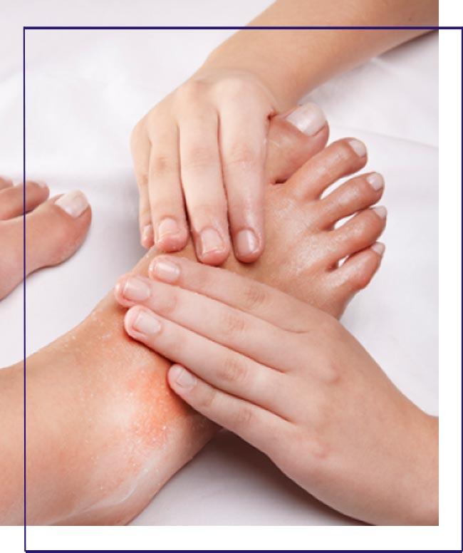 Tratamentos para fissuras de pés em Cubatão