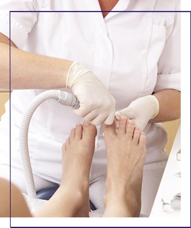 Tratamentos para micoses nos pés em Cubatão